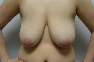 Manhattan Breast Lift before 3